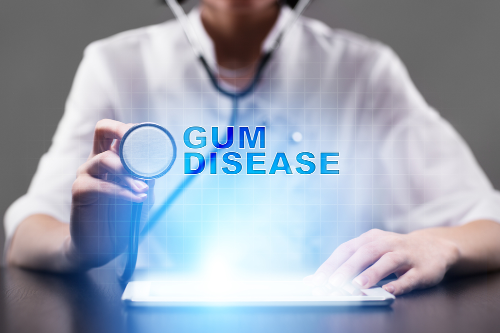 Periodontal Disease: The Link Between It and Other Serious Diseases