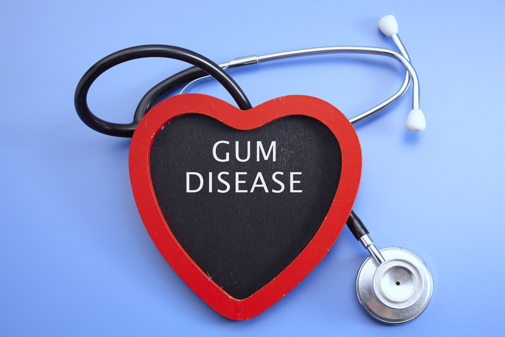 The Alarming Link Between Periodontal Disease and Heart Disease