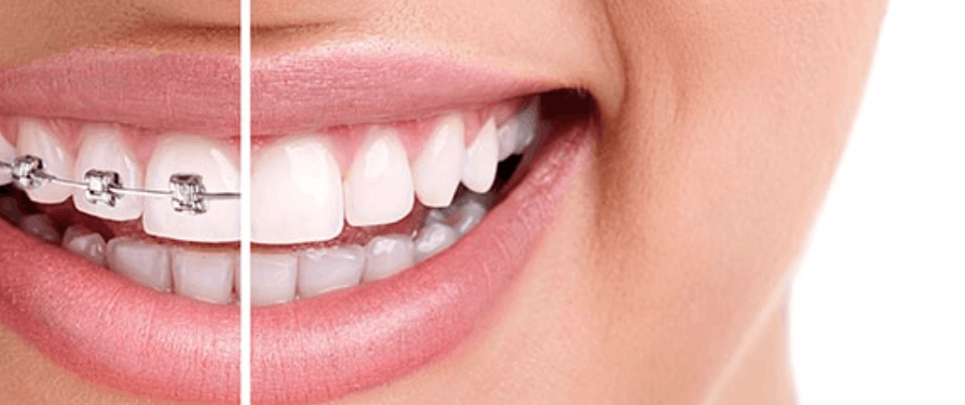 Are invisible braces the right choice for you?
