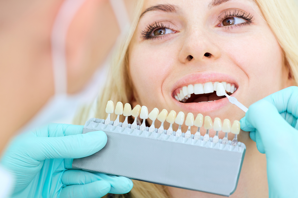 Everything You Should Know About Dental Implants