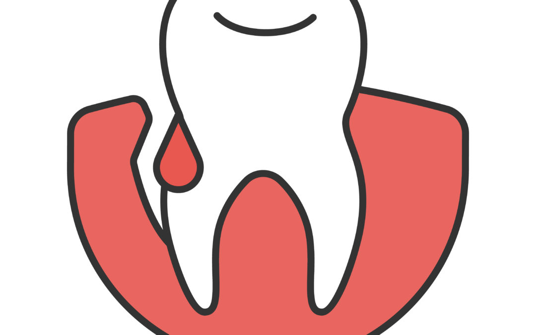 Understanding How Gingivitis Affects Dental Health