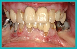Pre Dental Implants